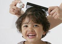Anti-poux : la solution brevetée Vamousse, efficace en 15 minutes